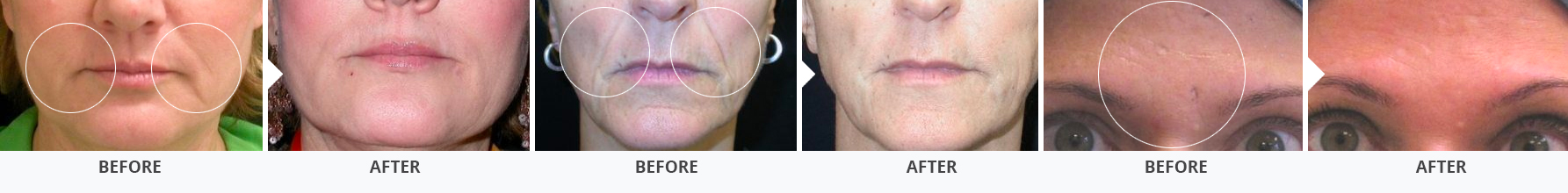 Before and after photos for Juvederm cosmetic injectables