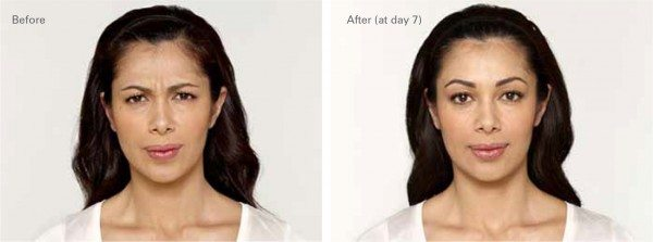 Before and after photo of a woman with less facial lines after procedure