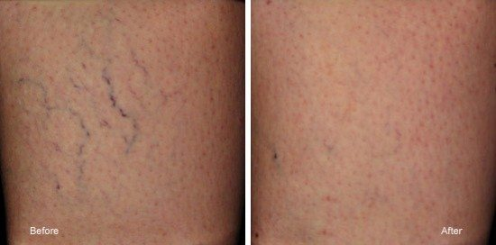 Before and after photo of spider veins on skin