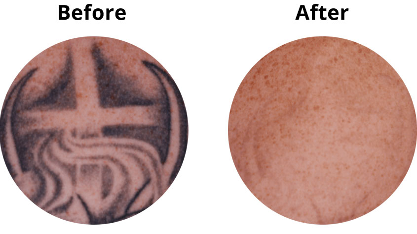 APDerm-LP-TattooRemoval-BA1