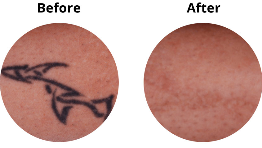 APDerm-LP-TattooRemoval-BA2