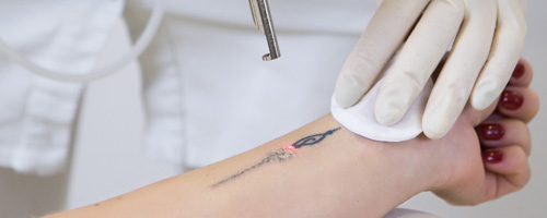 Tattoo being removed on patient's arm