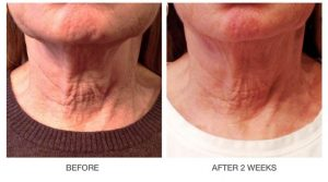 Neck before and after