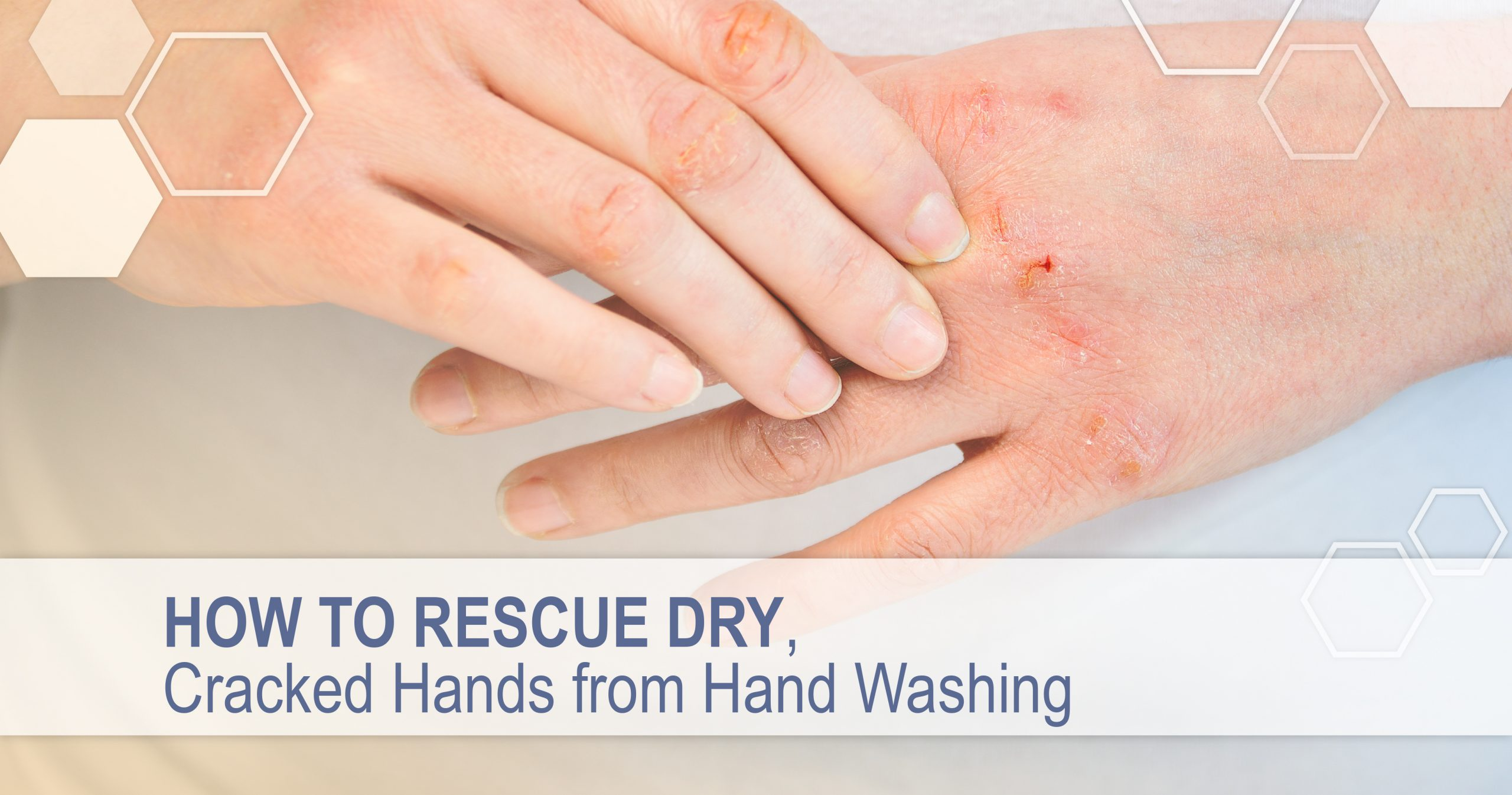 For hands dry cracked treatment home 8 Home
