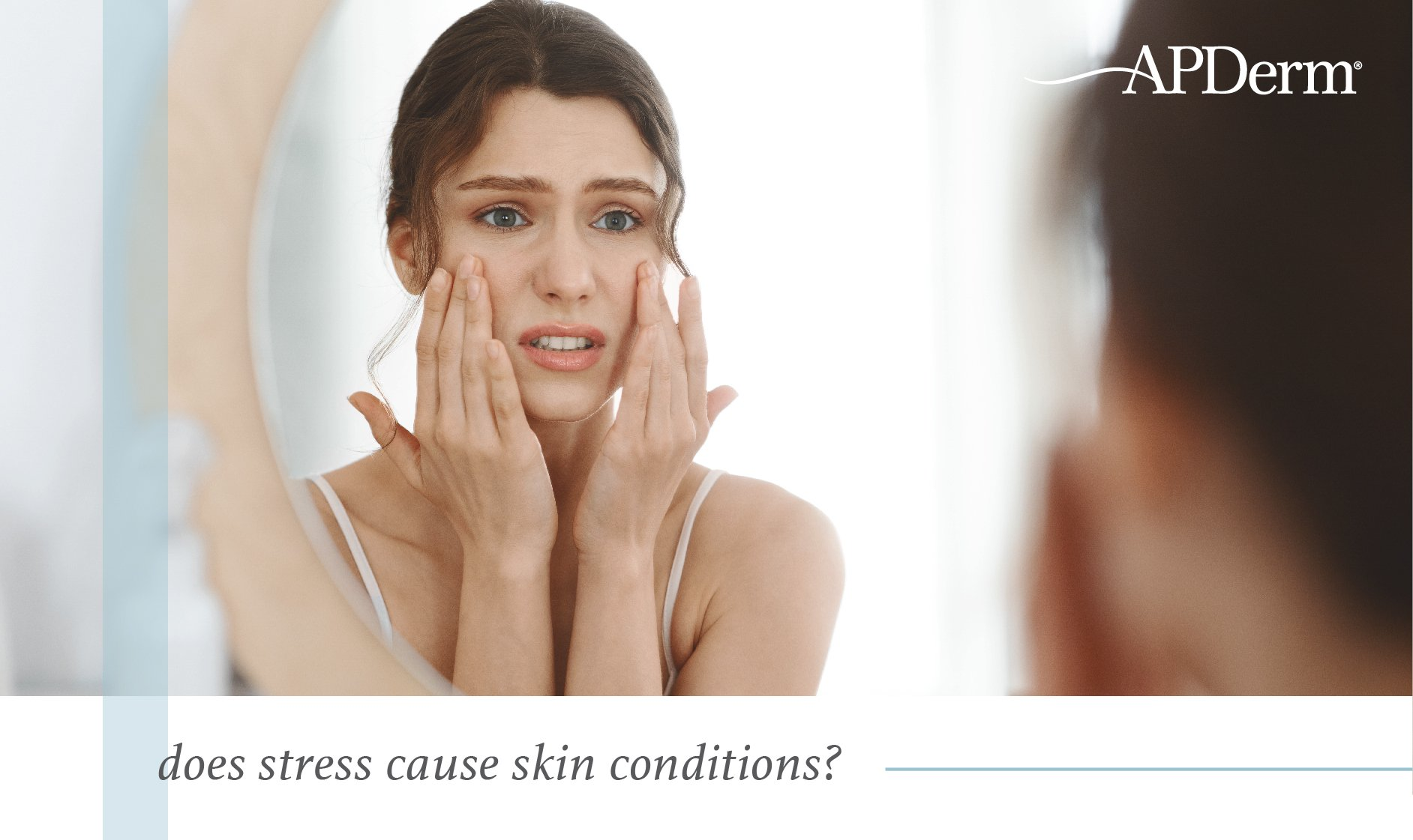 Skin Stress Connection